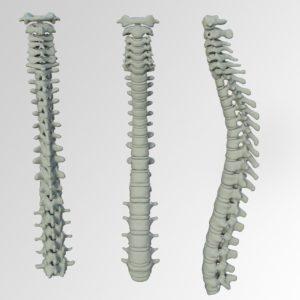 עמוד שדרה